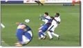 David Villa : fracture du tibia (Choc)